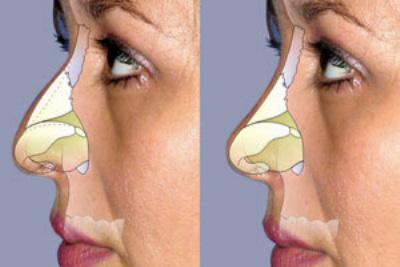 cirugia-nariz-esquema